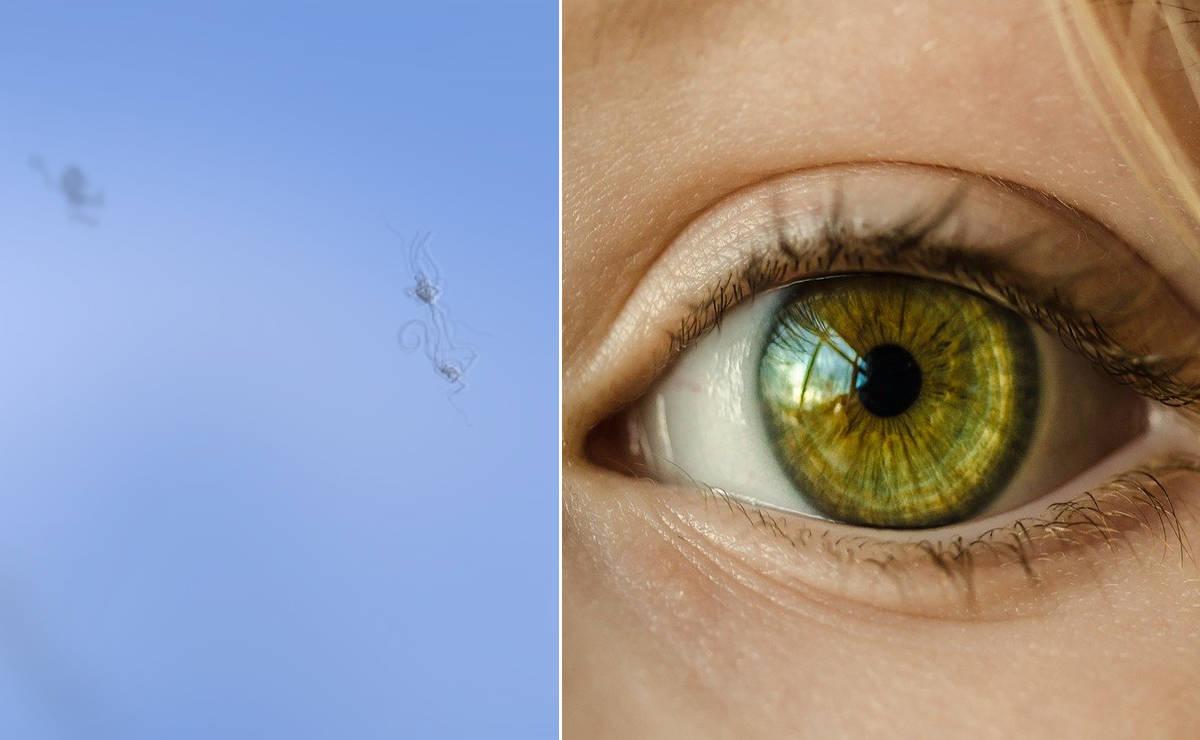 moscas volantes pueden desaparecer